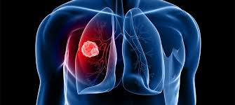 cancer tumour on lung