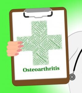 doctors clipboard saying osteoarthritis